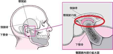 顎で音が鳴るけど痛くない!その原因と対処法を解 …